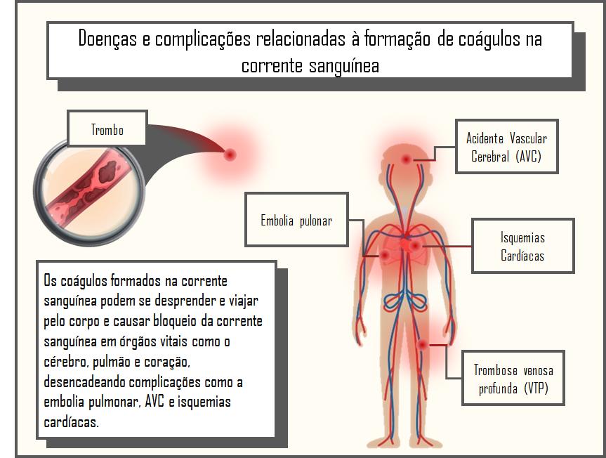 Sanguíneos pode coágulos causar um sentar carro em