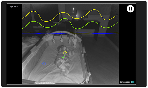 Viewer for Baby Monitor (Xbox)- screenshot thumbnail