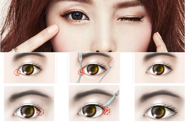 Mở rộng góc mắt Hàn Quốc - Mắt đẹp không lo sẹo xấu - Ảnh 2