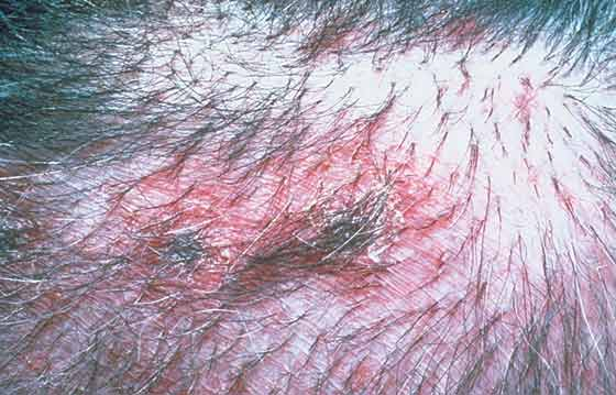 Crusted papules in a 3-year-old, male castrated Labrador Retriever with bacterial pyoderma