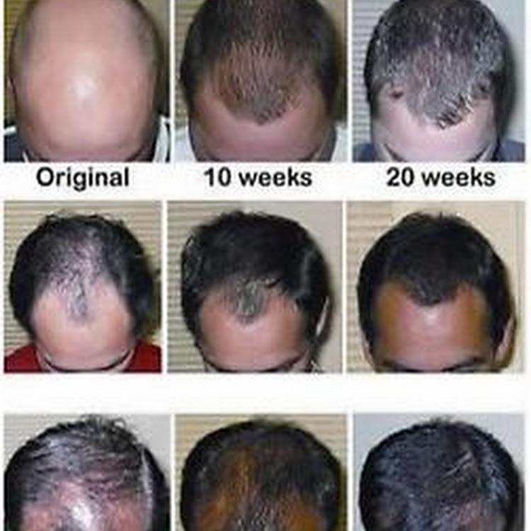 Organic Root Stimulator Hair Fertilizer Growth Lotion 6 Ounce