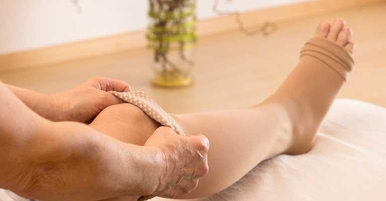 Compression Stockings for Varicose Veins: Benefits & Uses   Vein Clinics of  America