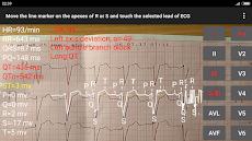 ECG Reader 2のおすすめ画像3