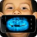 X-ray Teeth Joke