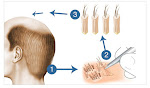 Follicular Unit Extensions in Hyderabad