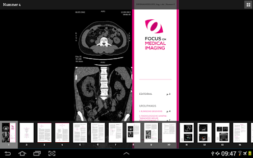 Focus On Medical Imaging- screenshot thumbnail