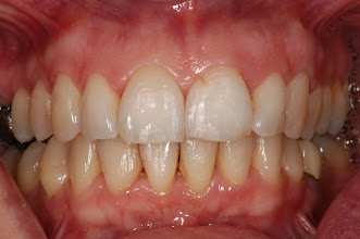 Photo: Patient Colin finish 16 months later 'Invisalign changed my life. Thank you!'