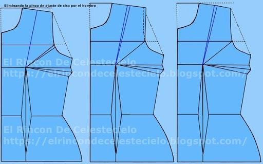 Forma de eliminar la pinza de ajuste de sisa por el hombro