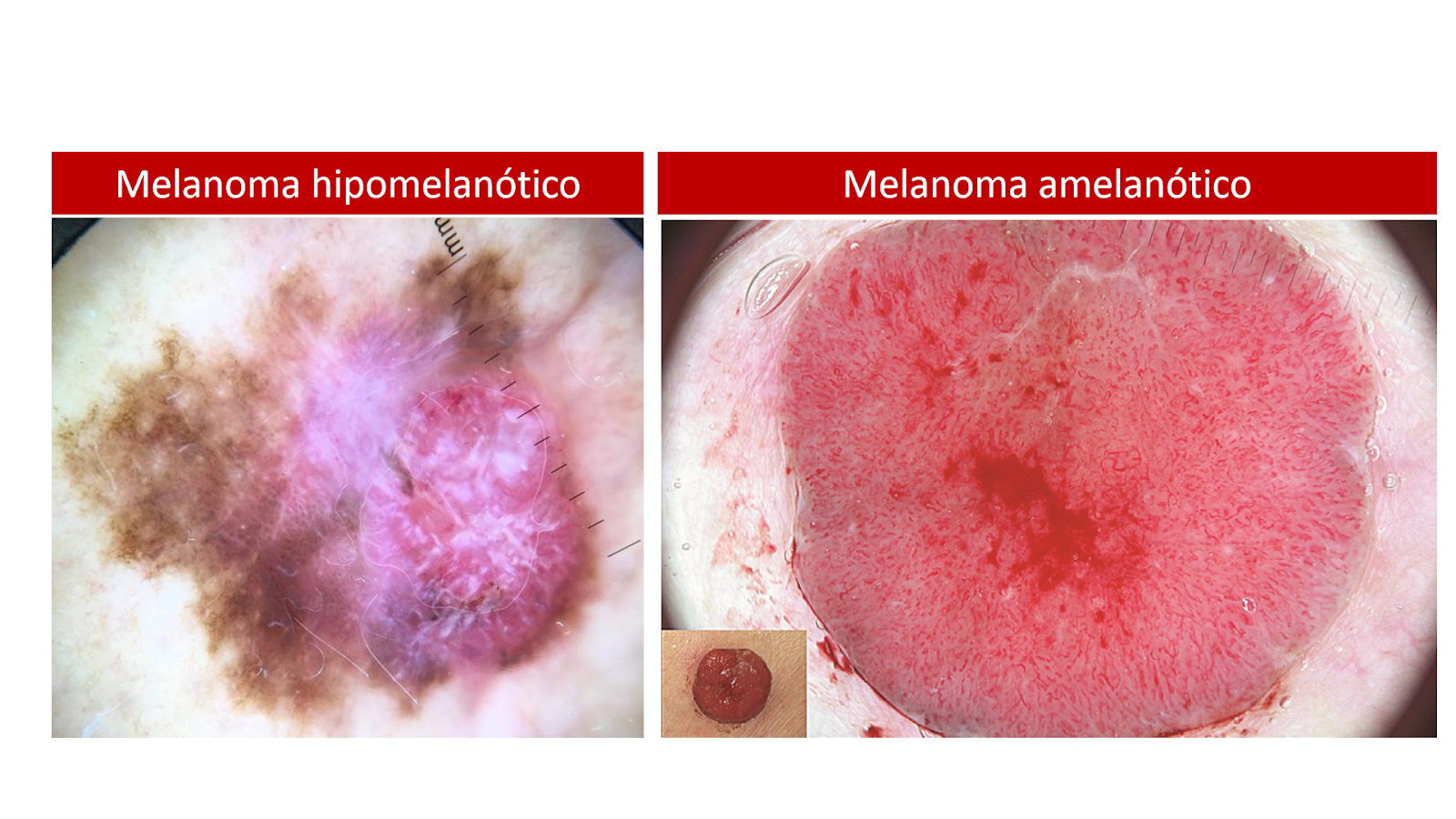 Melanoma con vasos puntiformes