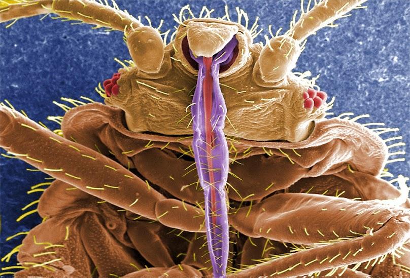 Zanim podejmie się drastyczne zabiegi mające na celu zwalczenie pasożytów, dobrze jest upewnić się, czy rzeczywiście mamy do czynienia z pluskwą domową.