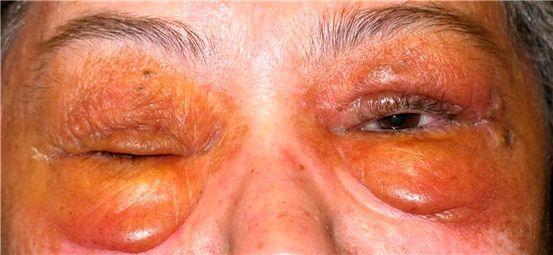 Hasil gambar untuk glomerulonefritis