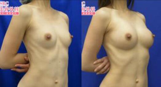 アキーセル併用コンデンスリッチ豊胸術後3ヶ月