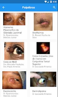 Download MedScope: Atlas Oftalmológico For PC Windows and Mac apk screenshot 4