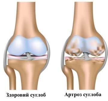 артроз суглоба