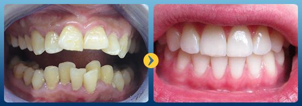Niềng răng hô trong bao lâu để hết thô vẩu hoàn toàn? 1