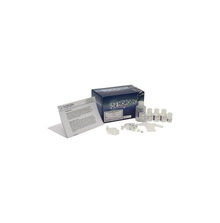 Cell Culture Media Exosome Purification and RNA Isolation Mini Kit