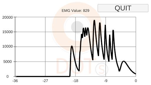 Dynofit EMG Graph