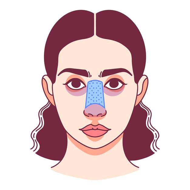 علت ورم بینی بعد از عمل بینی