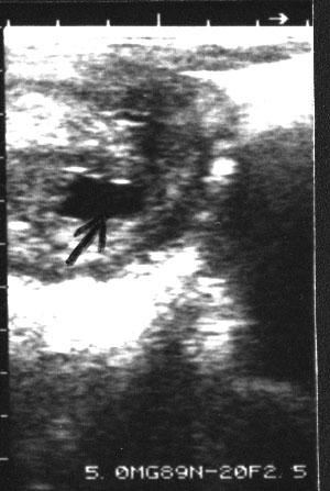 Imagen ecográfica del cuerno uterino izquierdo de una camella gestante. El día 17 de gestación muestra un comienzo de acumulación de fluidos no ecogénicos (flecha) en la luz uterina.