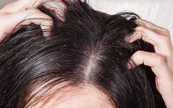 3 tiêu chí nhất định bạn phải biết khi lựa chọn dầu gội trị gàu cho da đầu? - Ảnh 2