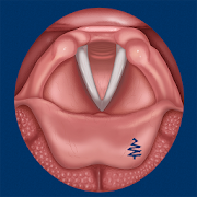 Vocal Folds ID  Icon