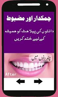 Teeth Whitening Tips In Urdu Apps On Google Play