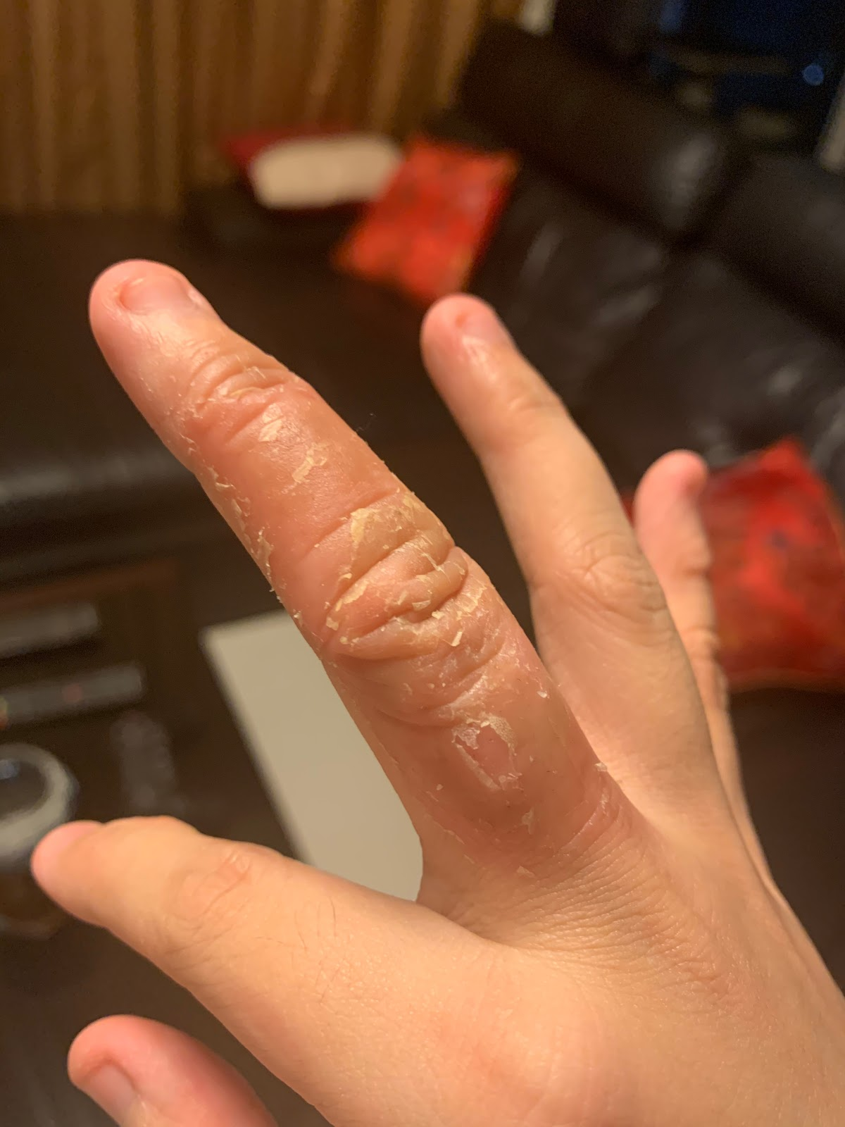 Red, inflamed, peeling skin due to eczema on fingers