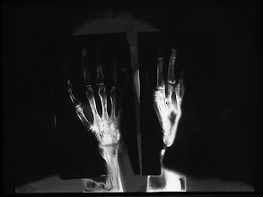 """Photo: © Olivier Perrot """"Rontgen"""" 1992 photogramme et radiographie 300x400mm"""