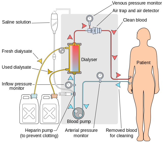 Hemodialysis procedure