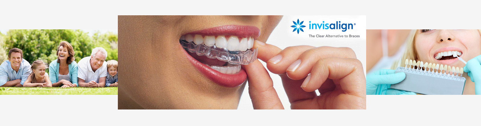 a lady placing invisalign braces over her teeth