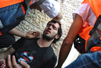 Photo: A Palestinian youth is treated by medics for a non life-threatening head injury, likely due to a rubber or rubber coated bullet.