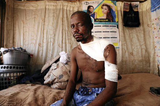 James Mazibuko was badly burnt with oil by the mother of his two children during his visit to the kids in Zondi, Soweto.