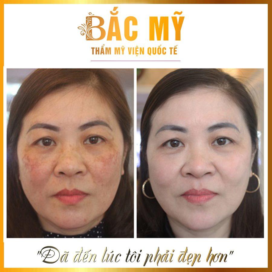 1 liệu trình điều trị da bằng Laser Picosure được thực hiện như thế nào? - Ảnh 2