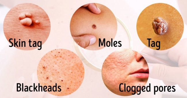 Your skin can warn you of many health problems - learn to recognize the signs!