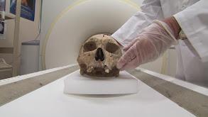 Skeletal Secrets thumbnail