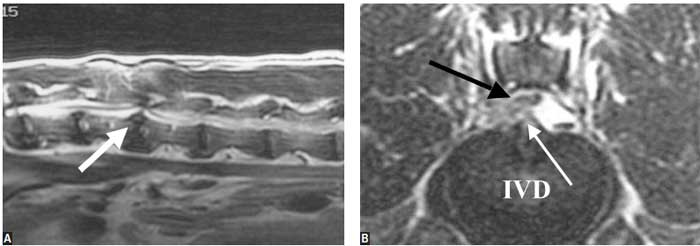 Extradural compression: L1-2, type II intervertebral disk extrusion in a 4-year-old, MC German shepherd dog that displayed mild paraparesis and significant thoracolumbar pain