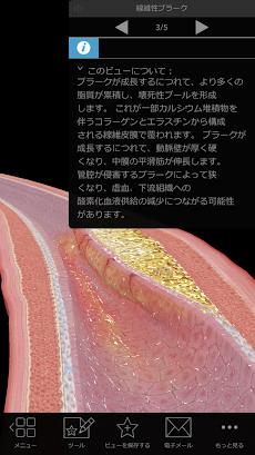 生理学と病理学:生体プロセスと疾患のおすすめ画像2