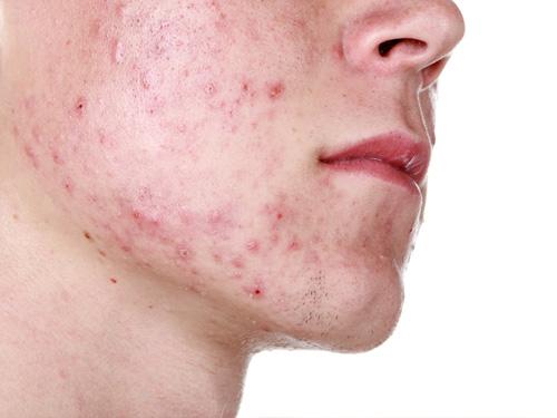 Detox có giúp da hết mụn?