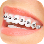 Braces App That Look Real