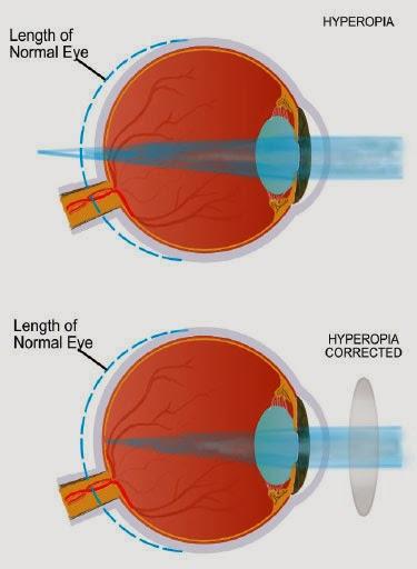 Obat Herbal Mata Jauh atau Rabun Dekat