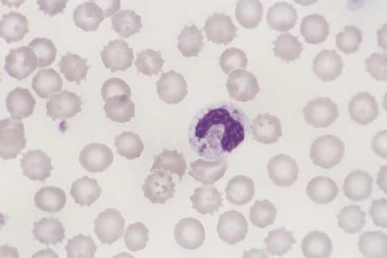 Canine toxic band neutrophil. Inflammation or toxemia causes morphologic changes in neutrophils. In this band neutrophil, cytoplasmic basophilia, vacuolation, and a Dohle body are evident (100x).