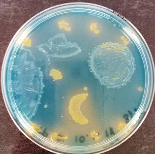 CLED + Escherichia coli + Proteus mirabilis