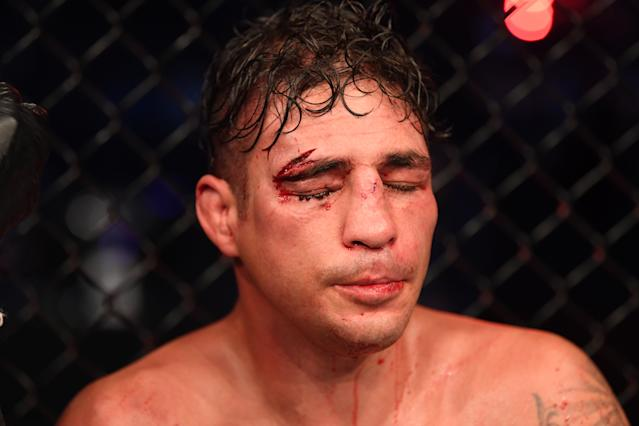 Bloodied Diego Sanchez resting with his eyes closed