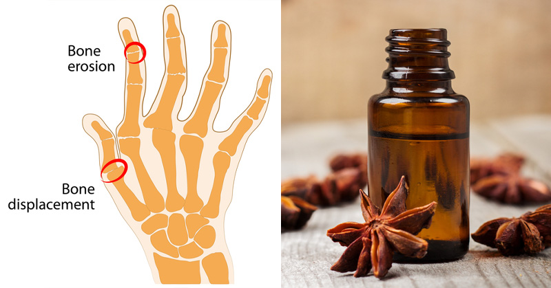 Anise Essential Oil: 10 Health Benefits