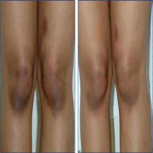 How to bleach your knee  (Guide)