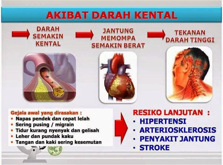 Penyebab Darah Kental Dan Cara Mengatasinya