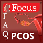 FAQs in PCOS