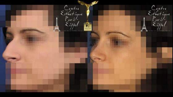 beauty trophy award nose surgery award sylvie poignonec