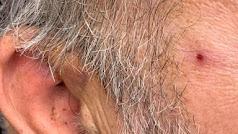 El denunciante fue herido en la cara con una barra de hierro.