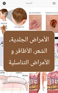 الأمراض الجلدية والتناسلية - náhled